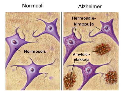 Ruokia, jotka ehkäisevät alzheimerin tautia