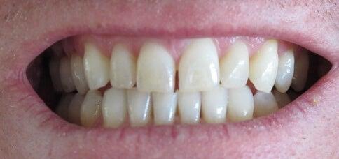 Muista pitää huolta hampaistasi.