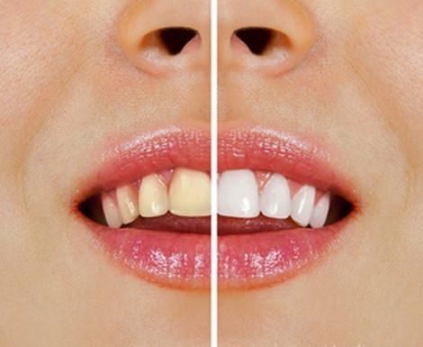 Hampaiden valkaisu luonnollisesti