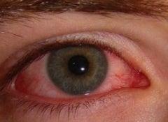 punaiset-silmät