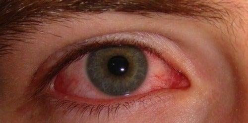 Silmien punoitus - syyt ja hoitokeinot