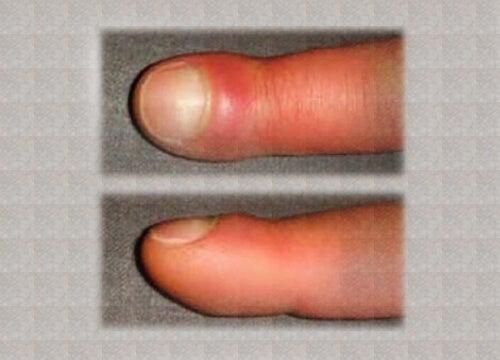 Mistä sormien turvotus johtuu?