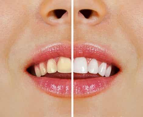 Vaalenna hampaiden sävyä kotikonstein