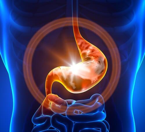 Eroon turvonneesta vatsasta näillä ruoka-aineilla