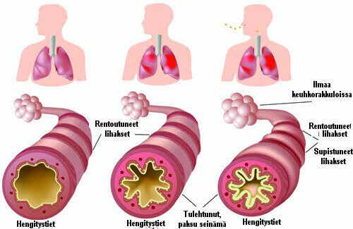 Krooninen astma ja allergiat - mikä avuksi?