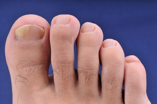 Kotihoidot käsien ja jalkojen kynsisieneen