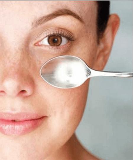 Tummat silmänaluset munuaiset