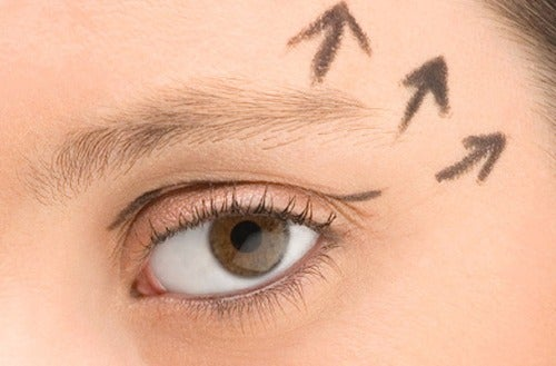 Vinkkejä silmänympärysten elvyttämiseksi
