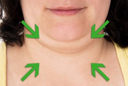 Vinkkejä ja hoitokeinoja pienentämään kaksoisleukaa