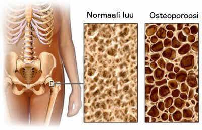 Osteoporoosin torjuminen ruokavalion avulla