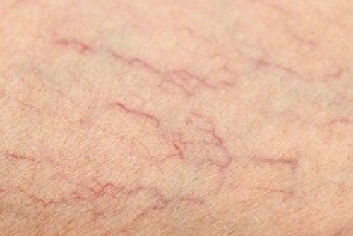 Katkenneiden verisuonien hoito ja ehkäisy