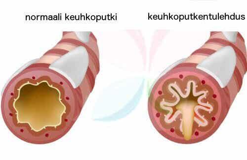 10 ruoka-ainetta, jotka taistelevat astmaa vastaan