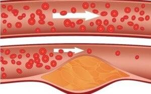 Kolesteroli 2