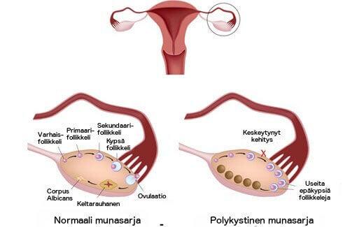 Mikä on munasarjojen monirakkulaoireyhtymä ja miten sitä hoidetaan?