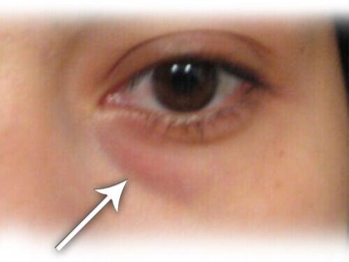 Kotitekoinen hoitokeino silmäpussien hoitoon