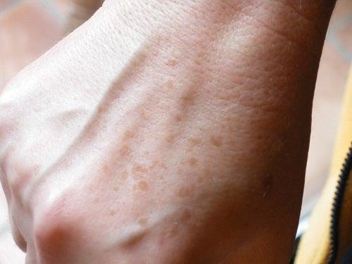 Häivytä käsien maksaläiskät