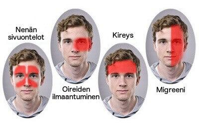 Uusi tehokas hoito, jonka on havaittu hoitavan migreeniä