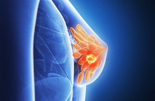 Onko rintasyöpä ennustettavissa?