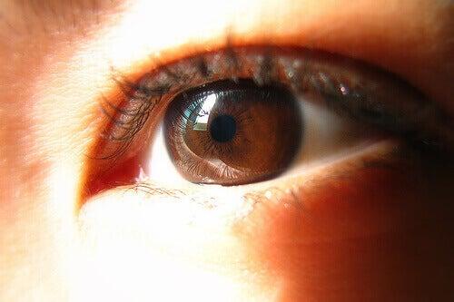 Ruskeasilmäiset voivat kärsiä muita enemmän verenkierto-ongelmista.
