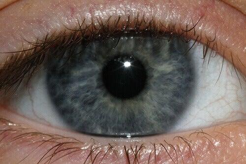 Silmien väri voi kertoa terveydestäsi paljonkin.
