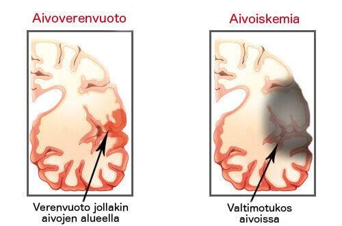 ACV: aivohalvauksen merkkejä