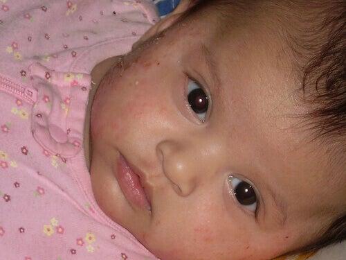 Ekseemat ovat vauvoilla hyvin yleisiä.