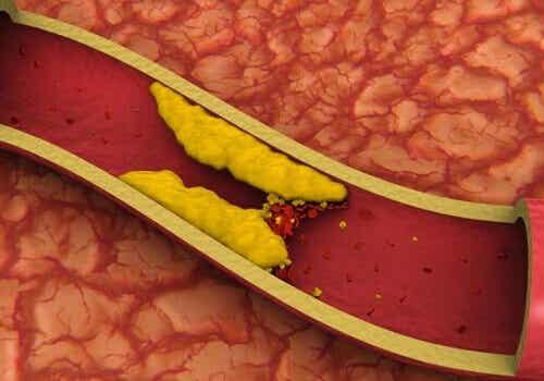 Kolesterolia alentavia herkullisia mehuja