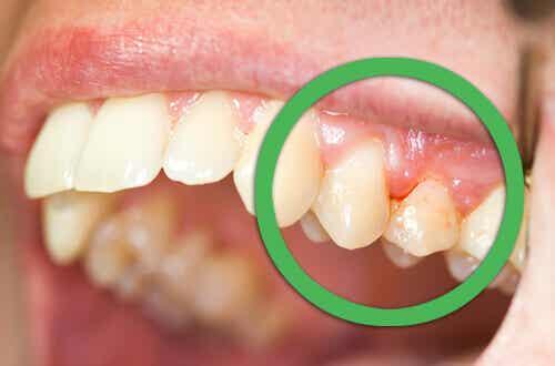 Ikenet ja hampaat kuntoon luonnontuotteilla