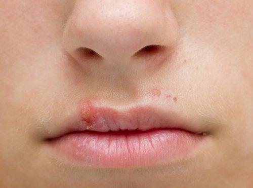 Eroon huuliherpeksestä kotikeinoin
