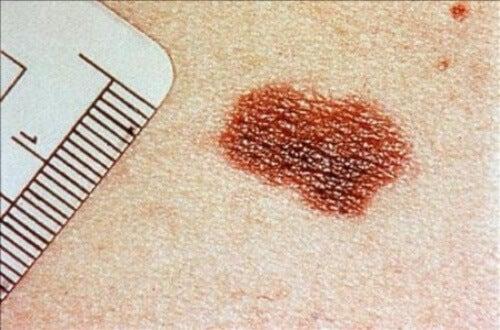tavallinen luomi vai ihosyöpä