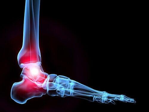 Kalsiumin puute voi johtaa osteoporoosiin.