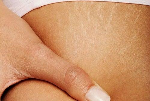 Voiko raskausarvista päästä eroon?