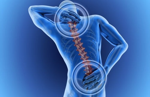 välilevypullistuma aiheuttaa selkäkipua
