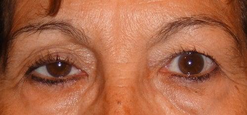 Roikkuvat silmäluomet – mikä avuksi?