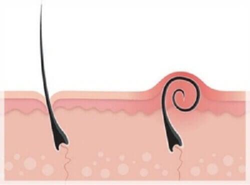 Sisäänkasvaneet ihokarvat: ehkäisy ja hoito