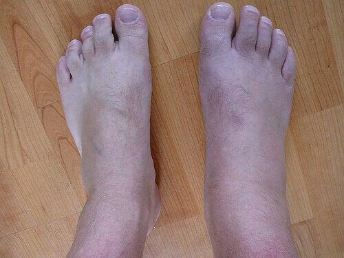 Kihti aiheuttaa jalkojen turvotusta.