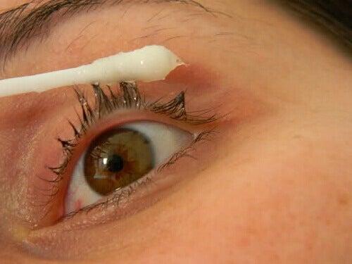 Silmähoito