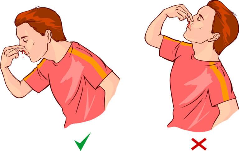 Kun nenäverenvuoto iskee, muista olla etukumarassa, jotta et nielisi verta.