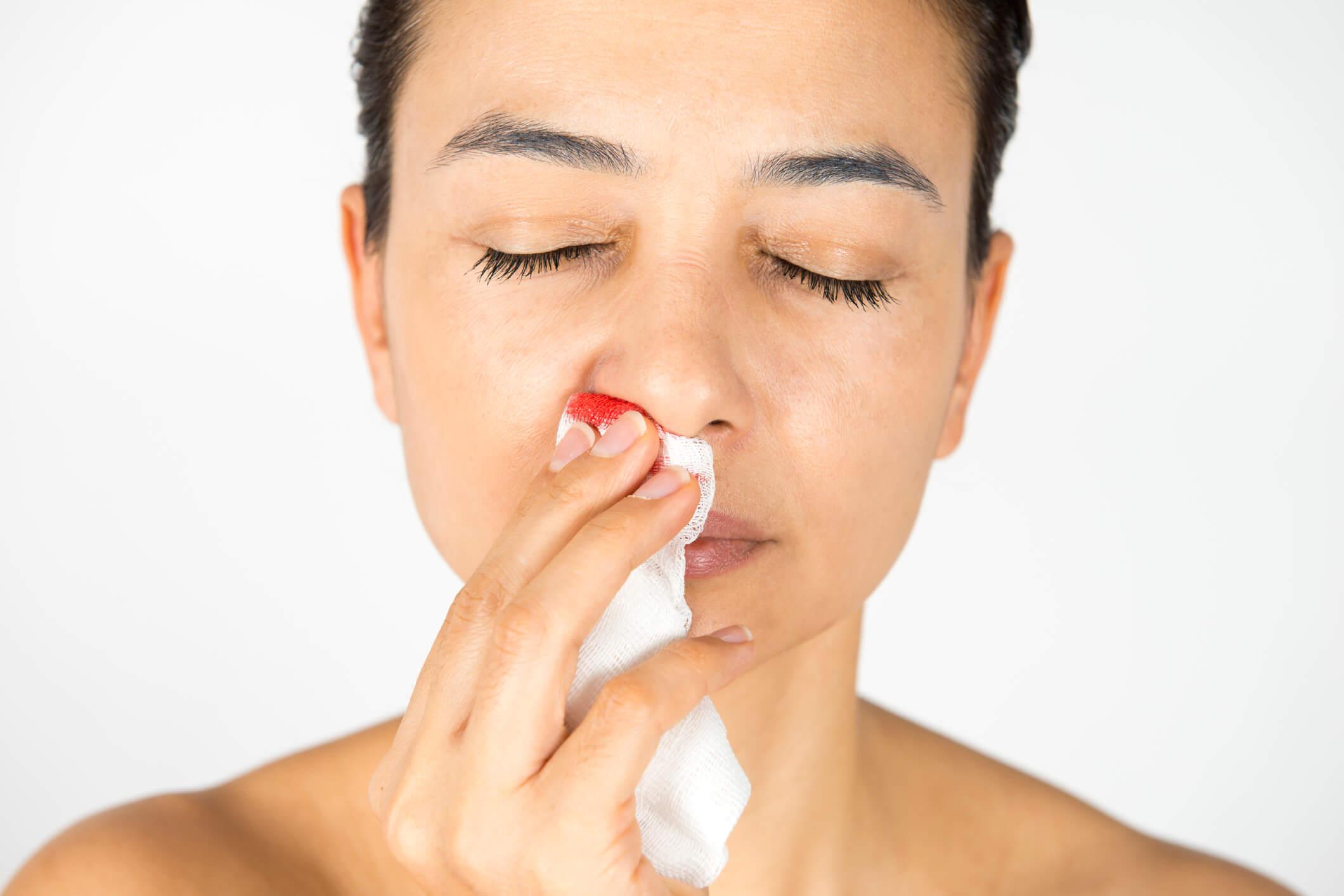 Nenäverenvuoto johtuu nenän pienten verisuonien rikkoontumisesta.