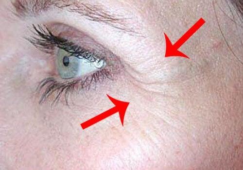 silmäkulman rypyt