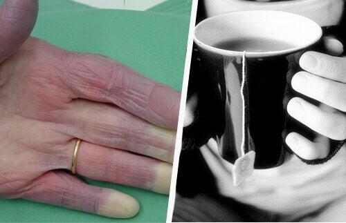 Mistä johtuvat jatkuvasti kylmät kädet?