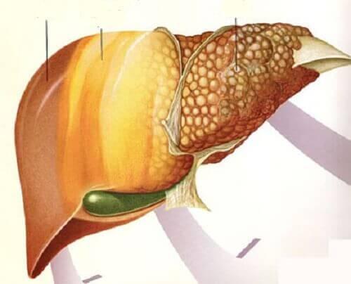 Hoida ja estä rasvamaksa hedelmillä