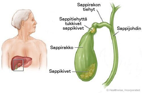 sappikivi1
