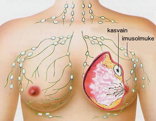 Viisi yleisintä syöpää naisilla