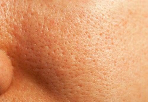 Näin pienennät ihohuokosia luonnollisesti