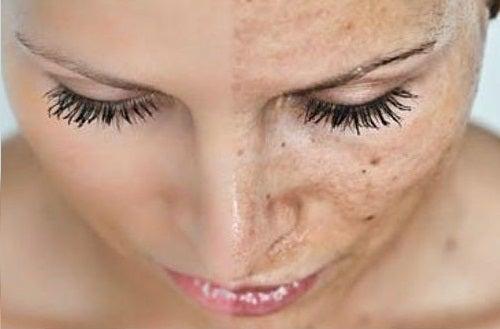 juo lämmintä vettä ehkäistäksesi ihon vanhentuminen