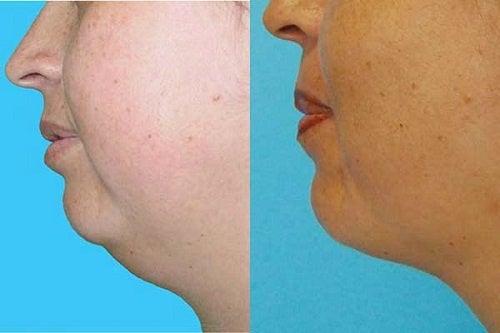 Hankkiudu kaksoisleuasta eroon ilman leikkausta