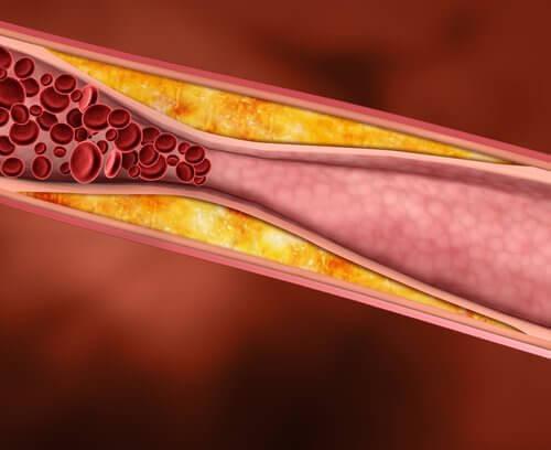 Verisuonen ahtauma