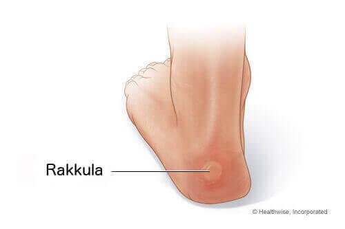 Rakkulat jaloissa voi johtua esim. liian ahtaista kengistä.