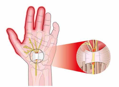 5 tapaa lievittää rannekanavaoireyhtymän aiheuttamaa kipua